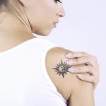 eliminar tatauaje descuento
