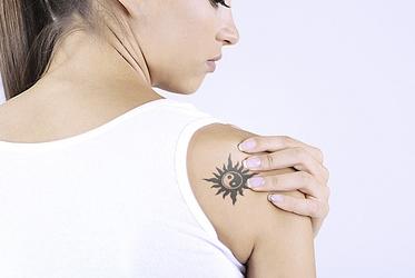 eliminar tatuaje descuento